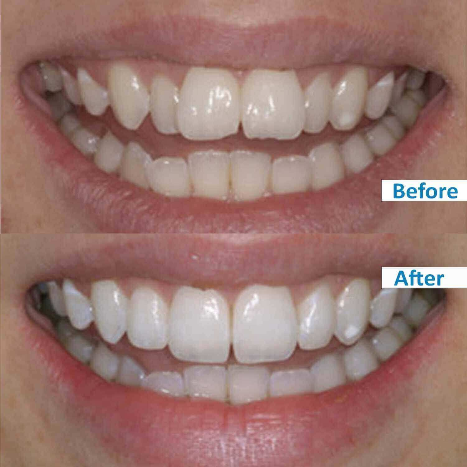 ensmile patient's before and after 5