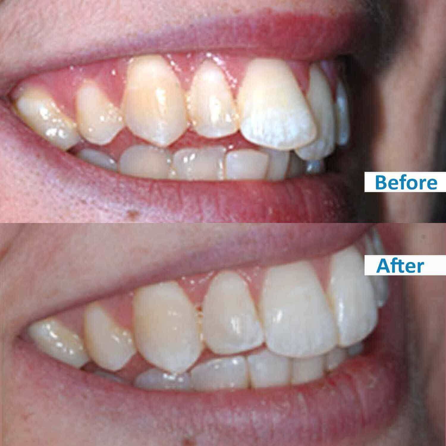 ensmile before and after