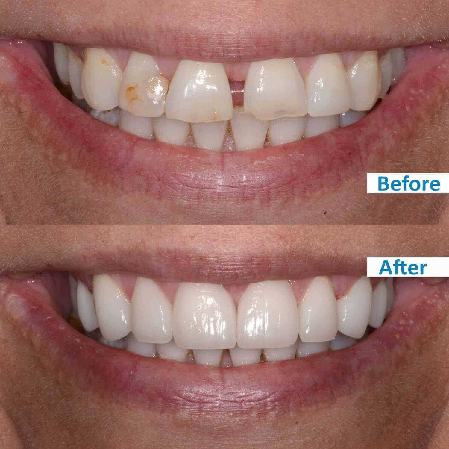 ensmile patient's before and after 3