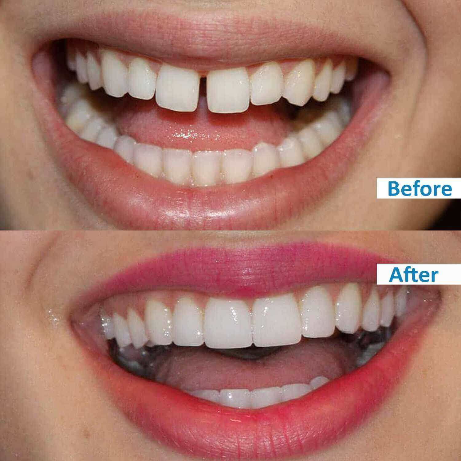 ensmile patient's before and after 4