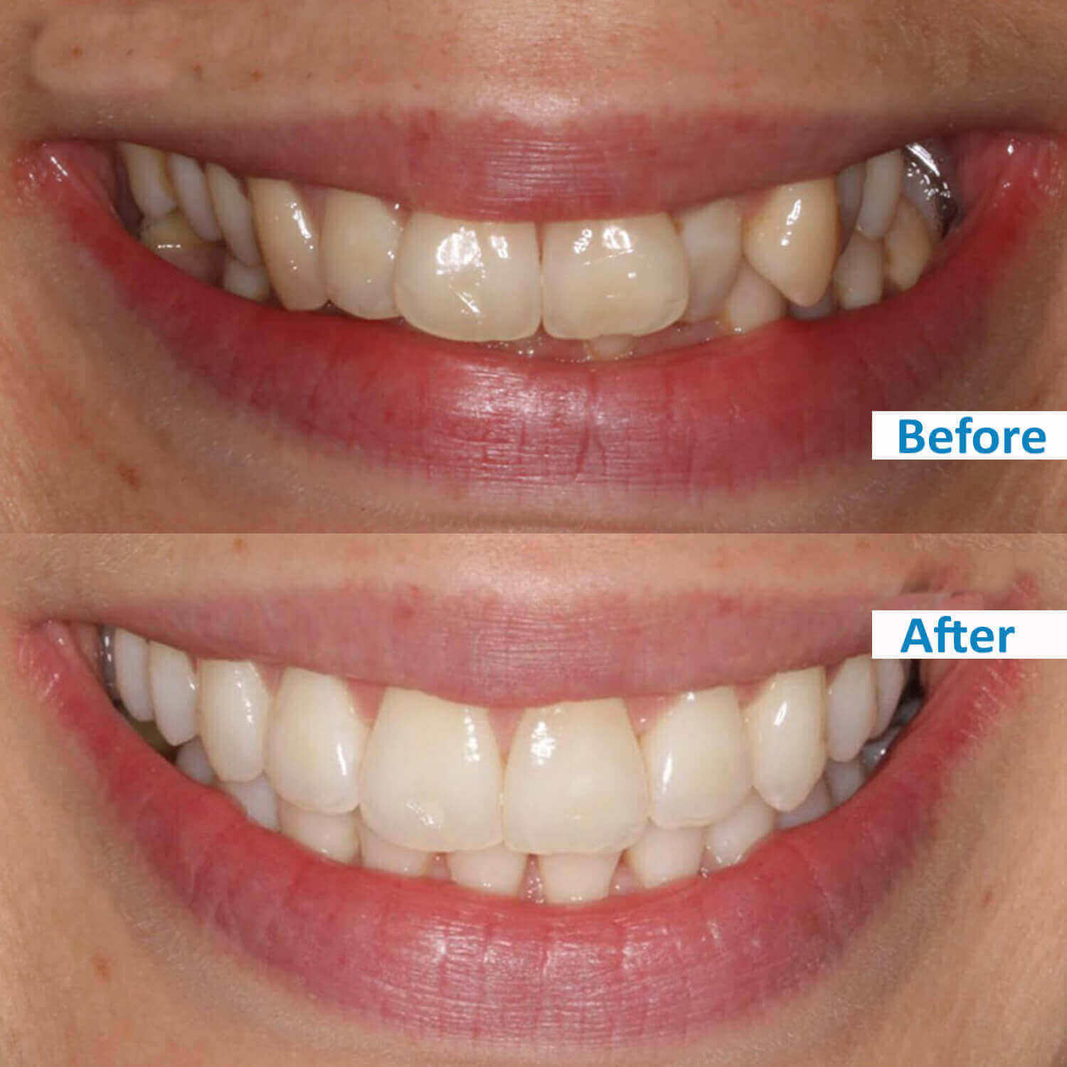 ensmile patient's before and after 6