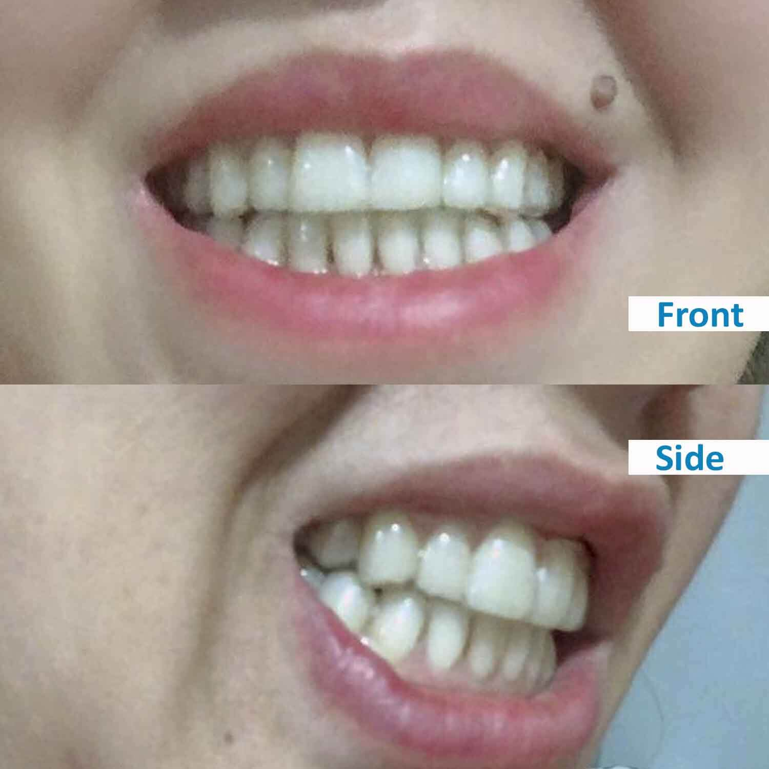 ensmile patient's before and after 2