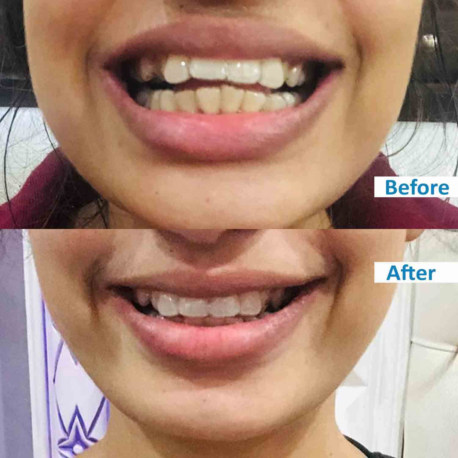 ensmile patient's before and after 1